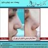 تزریق ژل به بینی