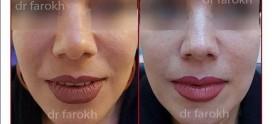 کوچک کردن بینی با آنزیم