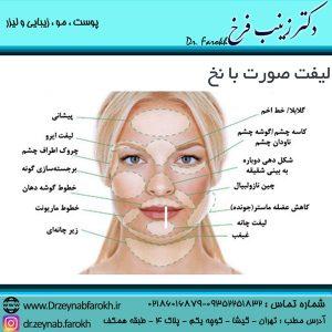 کاربرد لیفت صورت با نخ