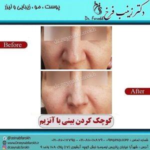 کوچک کردن بینی با تزریق آنزیم