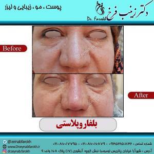 جراحی پلک 1