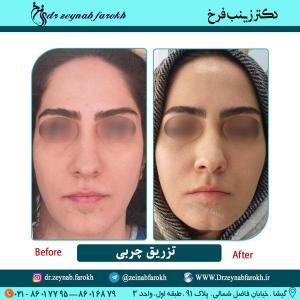 تزریق چربی در تهران 1