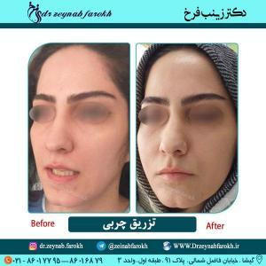 تزریق چربی در تهران 2