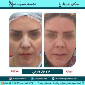تزریق چربی در تهران 3