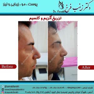 تزریق-آنزیم-و-کلسیم-به-بینی-3