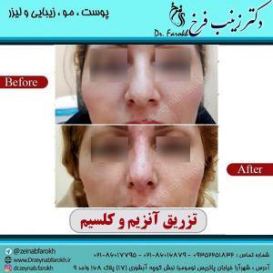 تزریق-آنزیم-و-کلسیم-به-بینی-4