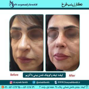 لیفت تیغه و کوچک شدن بینی باآنزیم
