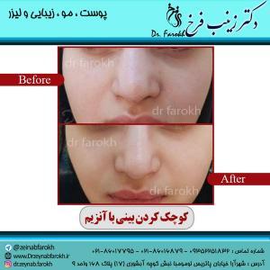 کوچک-کردن-بینی-با-آنزیم-2