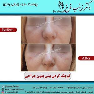 کوچک-کردن-بینی-بدون-جراحی-1