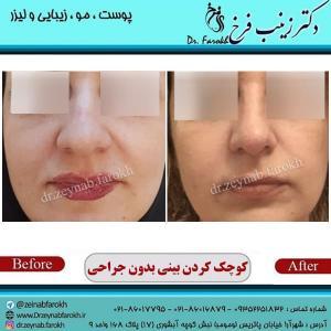 کوچک کردن بینی بدون جراحی 3
