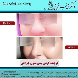 کوچک کردن بینی بدون جراحی 4