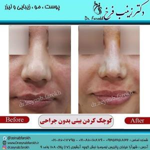 کوچک کردن بینی بدون جراحی 5