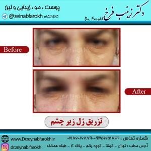 تزریق-ژل-زیر-چشم-1